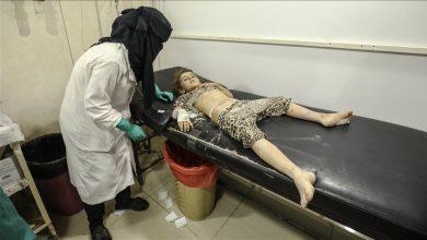 صورة سوريا.. إصابة 3 أطفال وامرأة في قصف على مخيم بإدلب
